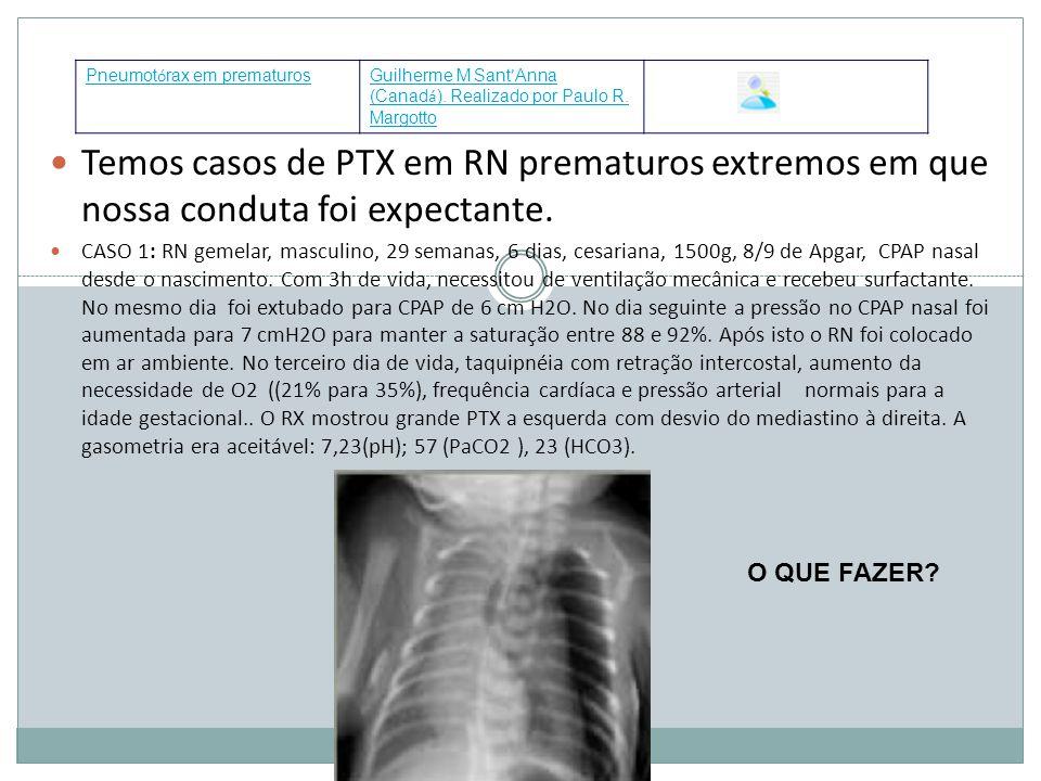 Pneumotórax em prematuros