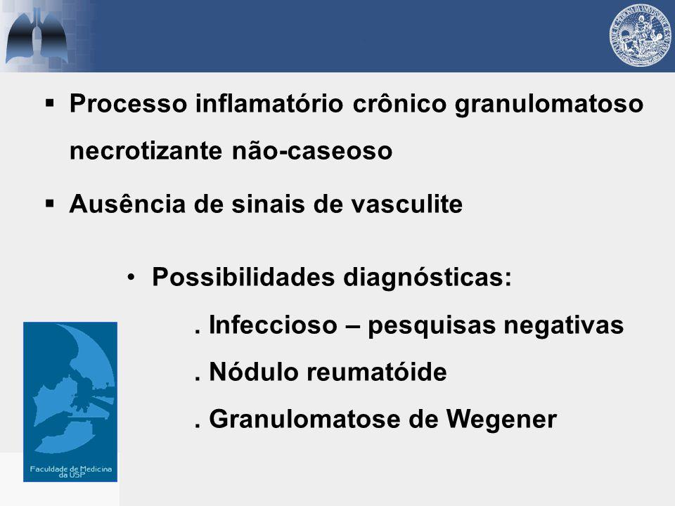 Processo inflamatório crônico granulomatoso necrotizante não-caseoso