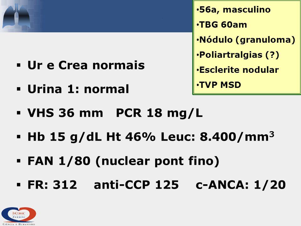 FAN 1/80 (nuclear pont fino) FR: 312 anti-CCP 125 c-ANCA: 1/20