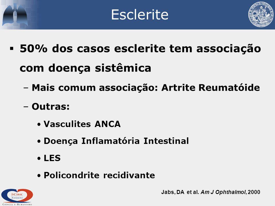 Esclerite 50% dos casos esclerite tem associação com doença sistêmica