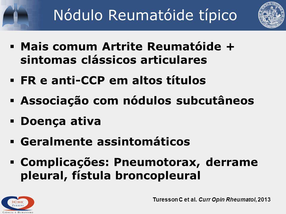 Nódulo Reumatóide típico