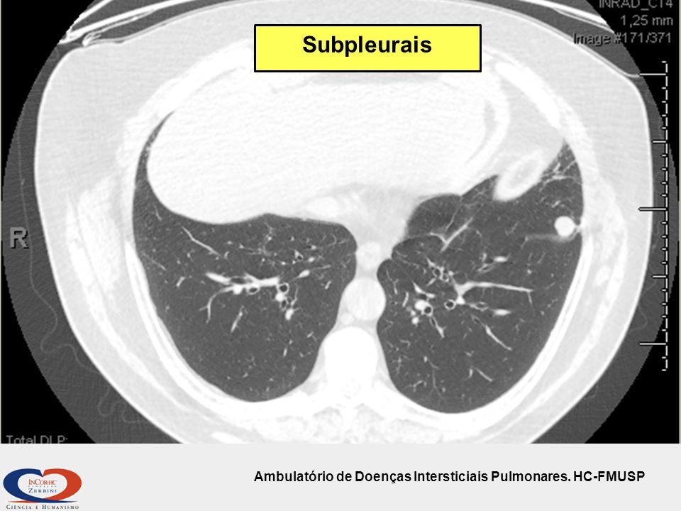 Subpleurais Ambulatório de Doenças Intersticiais Pulmonares. HC-FMUSP