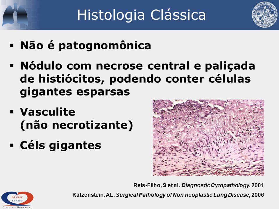 Histologia Clássica Não é patognomônica