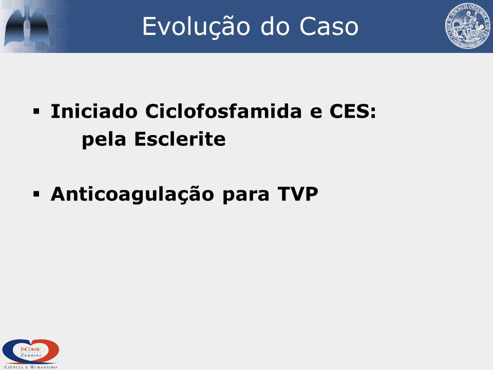 Evolução do Caso Iniciado Ciclofosfamida e CES: pela Esclerite
