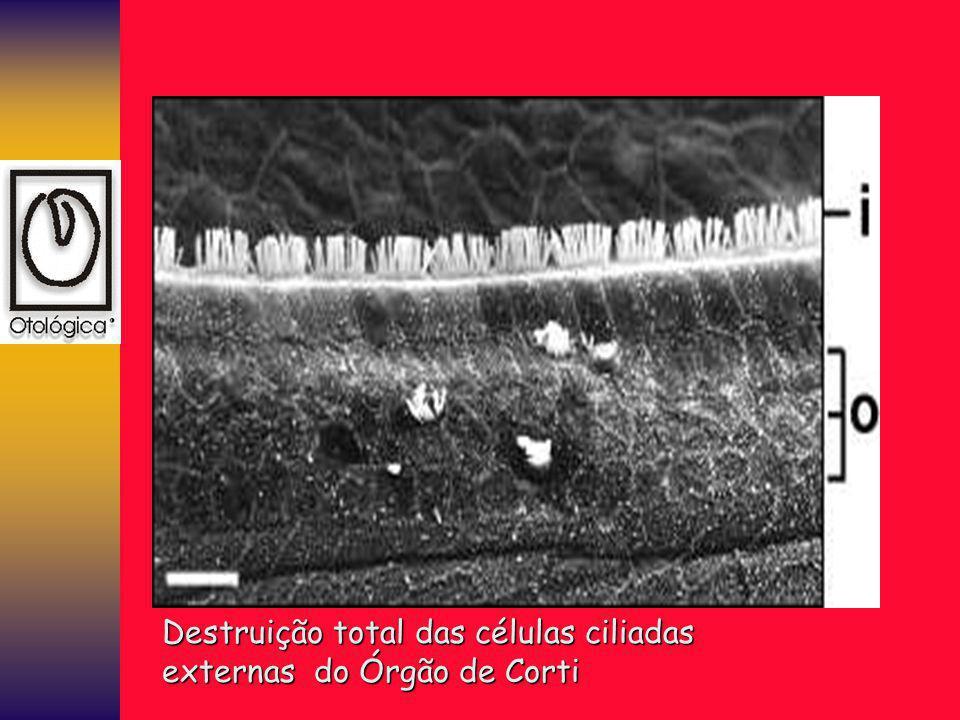 Destruição total das células ciliadas externas do Órgão de Corti