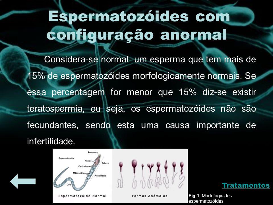 Espermatozóides com configuração anormal