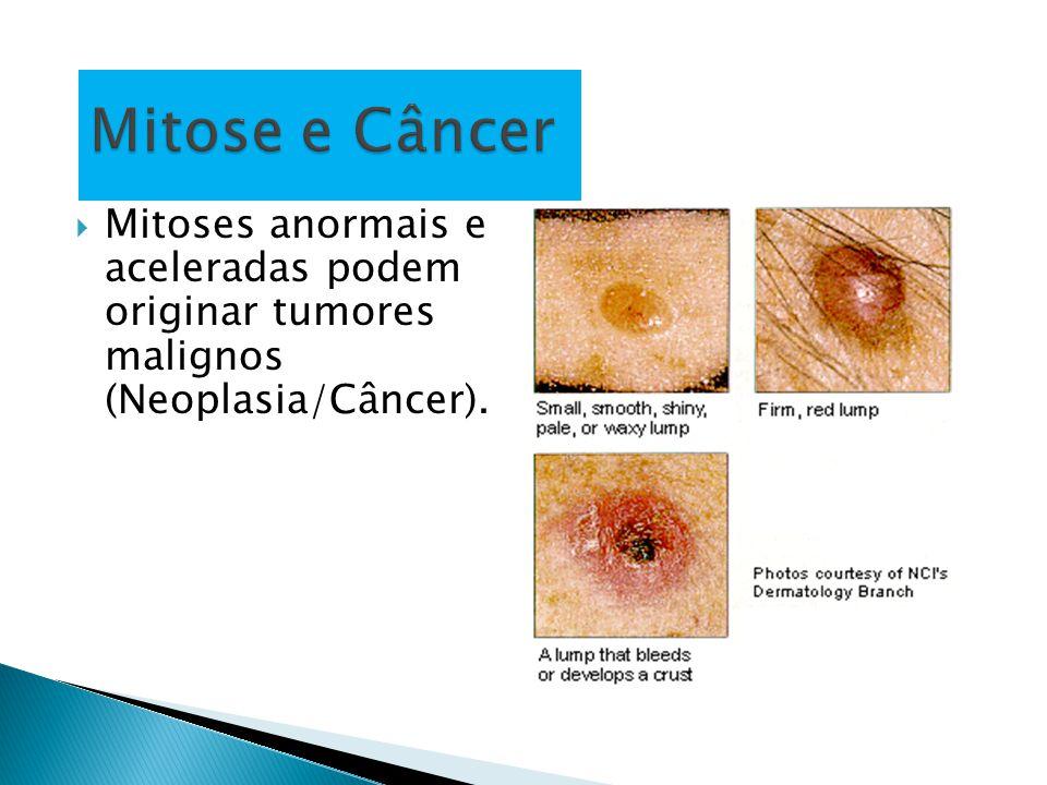 Mitose e Câncer Mitoses anormais e aceleradas podem originar tumores malignos (Neoplasia/Câncer).