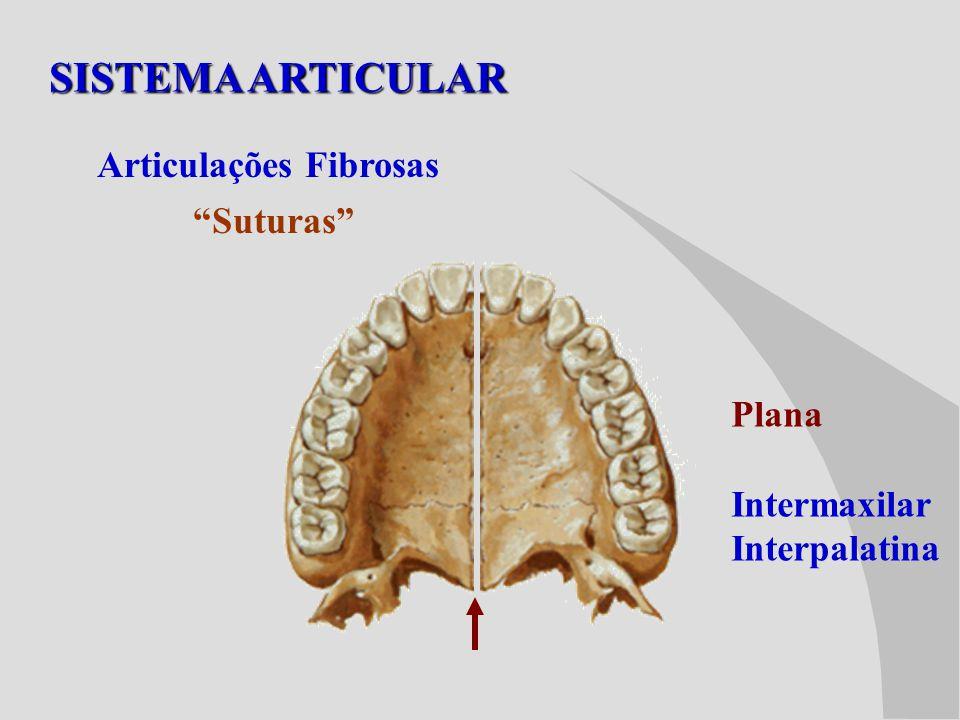 SISTEMA ARTICULAR Articulações Fibrosas Suturas Plana Intermaxilar