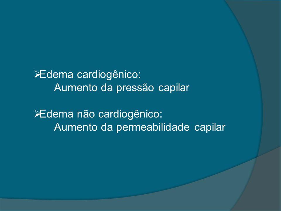 Edema cardiogênico: Aumento da pressão capilar.