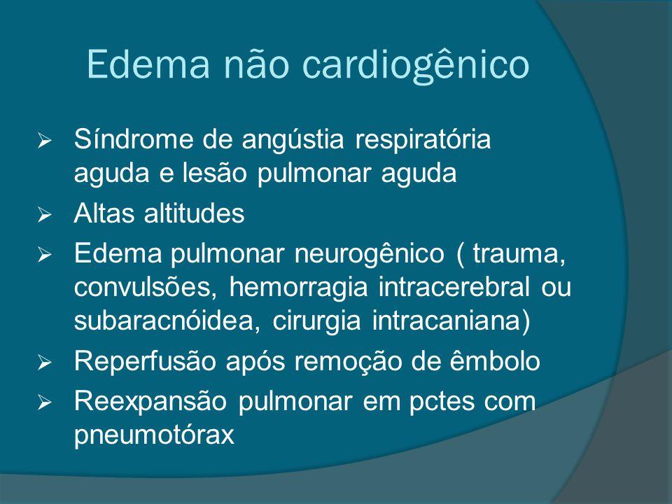Edema não cardiogênico