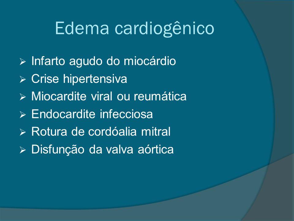 Edema cardiogênico Infarto agudo do miocárdio Crise hipertensiva