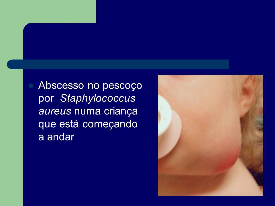 Abscesso no pescoço por Staphylococcus aureus numa criança que está começando a andar