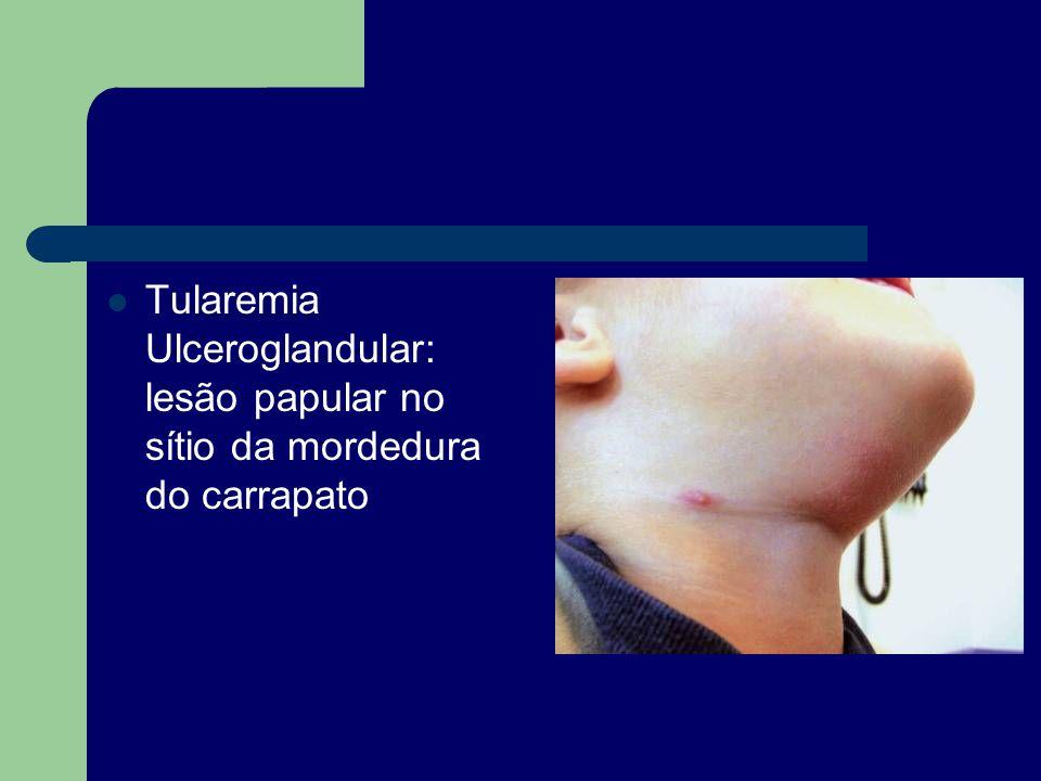 Tularemia Ulceroglandular: lesão papular no sítio da mordedura do carrapato