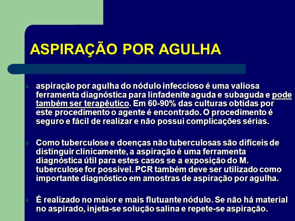 ASPIRAÇÃO POR AGULHA