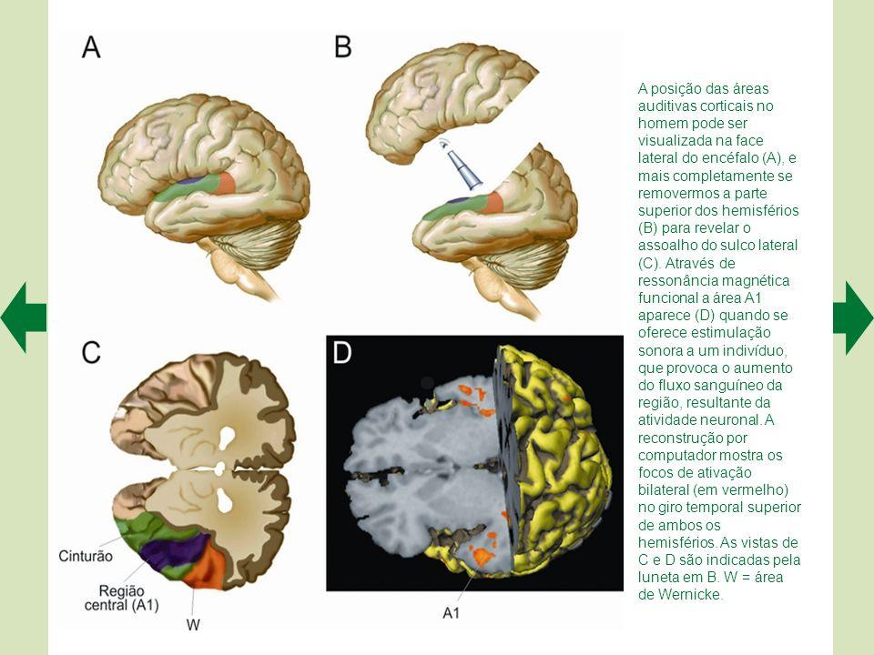 A posição das áreas auditivas corticais no homem pode ser visualizada na face lateral do encéfalo (A), e mais completamente se removermos a parte superior dos hemisférios (B) para revelar o assoalho do sulco lateral (C). Através de ressonância magnética funcional a área A1 aparece (D) quando se oferece estimulação sonora a um indivíduo, que provoca o aumento do fluxo sanguíneo da região, resultante da atividade neuronal. A reconstrução por computador mostra os focos de ativação bilateral (em vermelho) no giro temporal superior de ambos os hemisférios. As vistas de C e D são indicadas pela luneta em B. W = área
