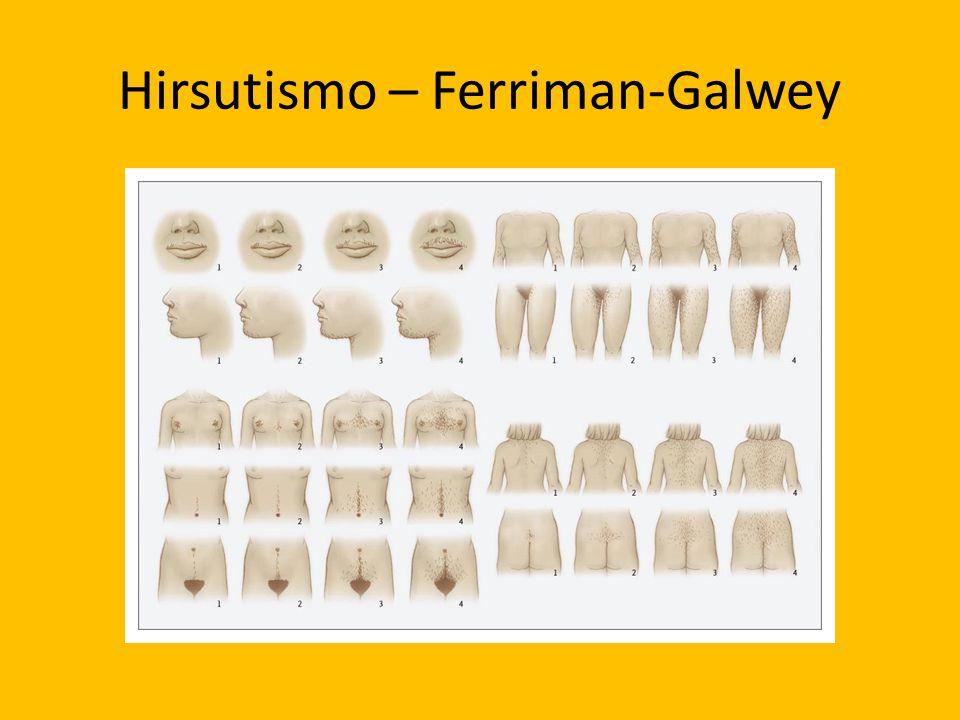 Hirsutismo – Ferriman-Galwey