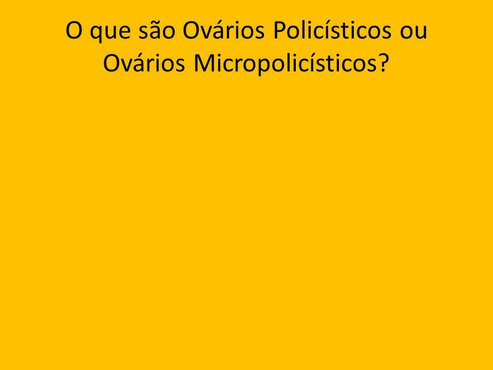 O que são Ovários Policísticos ou Ovários Micropolicísticos