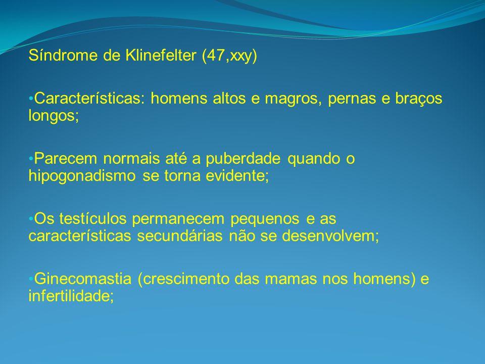 Síndrome de Klinefelter (47,xxy)