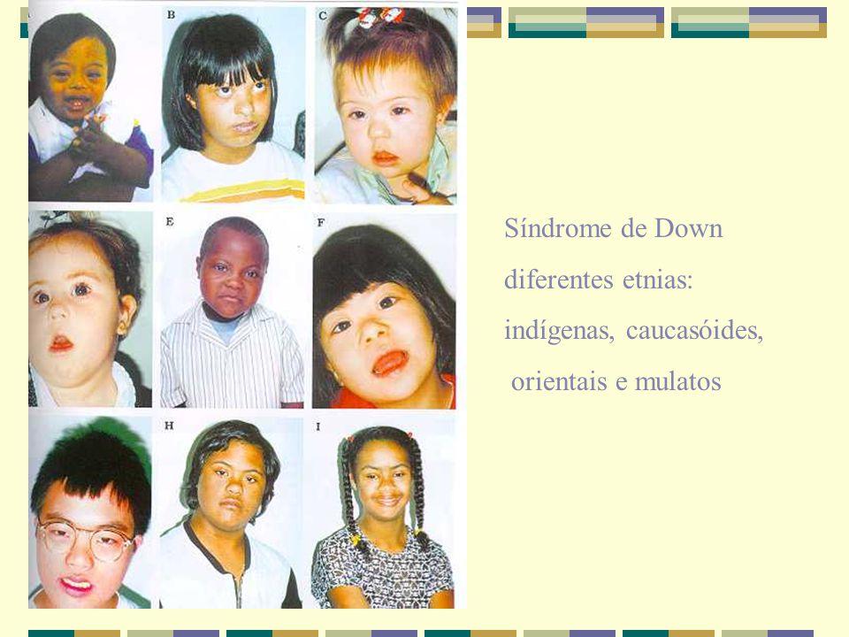 Síndrome de Down diferentes etnias: indígenas, caucasóides, orientais e mulatos
