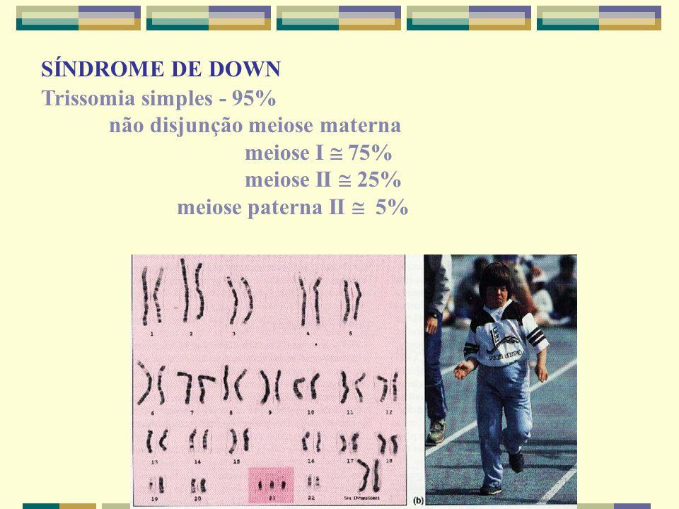 SÍNDROME DE DOWN Trissomia simples - 95% não disjunção meiose materna. meiose I  75% meiose II  25%