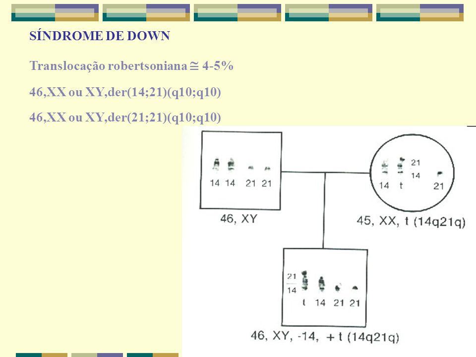 SÍNDROME DE DOWN Translocação robertsoniana  4-5% 46,XX ou XY,der(14;21)(q10;q10) 46,XX ou XY,der(21;21)(q10;q10)