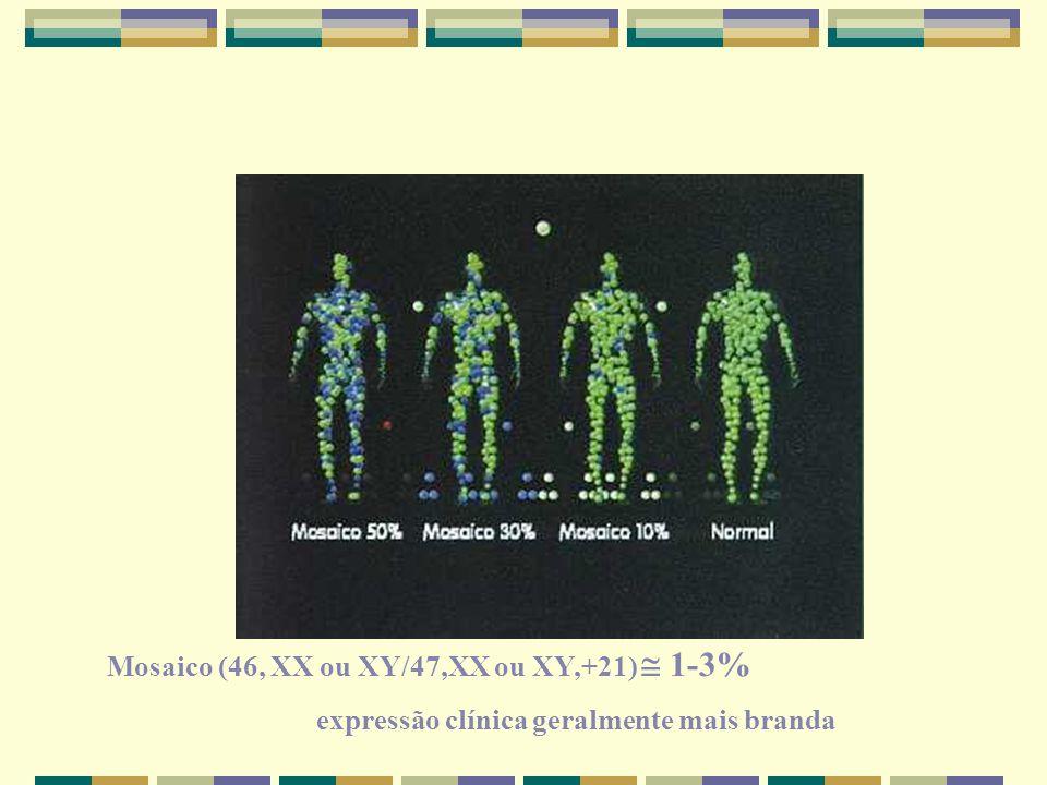 Mosaico (46, XX ou XY/47,XX ou XY,+21)  1-3%