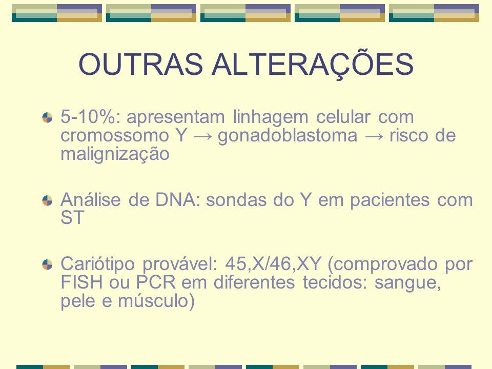 OUTRAS ALTERAÇÕES 5-10%: apresentam linhagem celular com cromossomo Y → gonadoblastoma → risco de malignização.