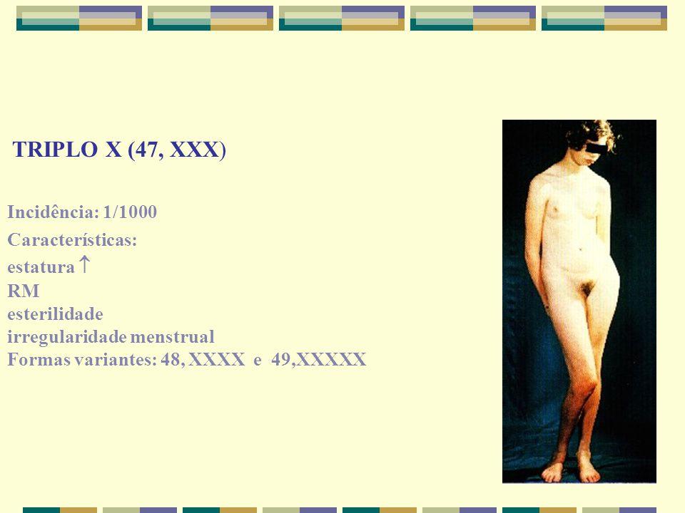 TRIPLO X (47, XXX) Incidência: 1/1000 Características: estatura  RM