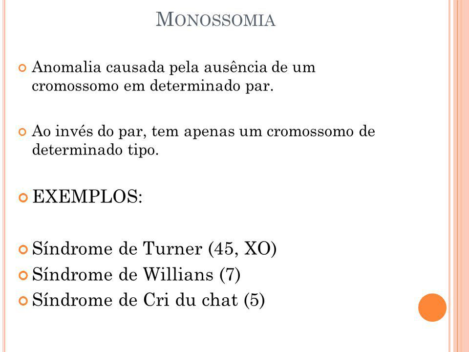 Monossomia EXEMPLOS: Síndrome de Turner (45, XO)