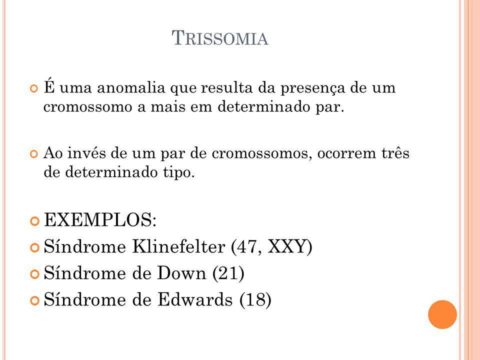Trissomia EXEMPLOS: Síndrome Klinefelter (47, XXY)