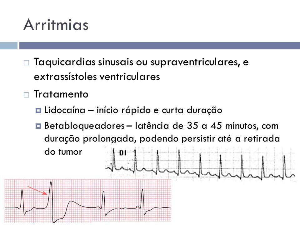 Arritmias Taquicardias sinusais ou supraventriculares, e extrassístoles ventriculares. Tratamento.