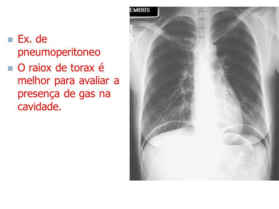 Ex. de pneumoperitoneo O raiox de torax é melhor para avaliar a presença de gas na cavidade.