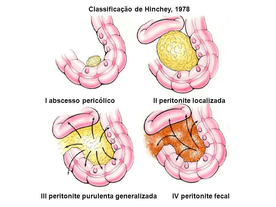 Classificação de Hinchey, 1978