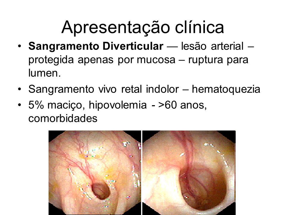 Apresentação clínica Sangramento Diverticular — lesão arterial – protegida apenas por mucosa – ruptura para lumen.