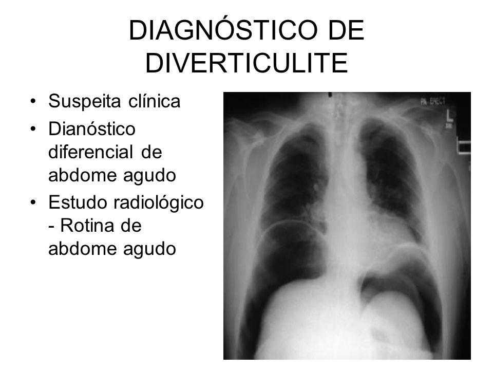DIAGNÓSTICO DE DIVERTICULITE