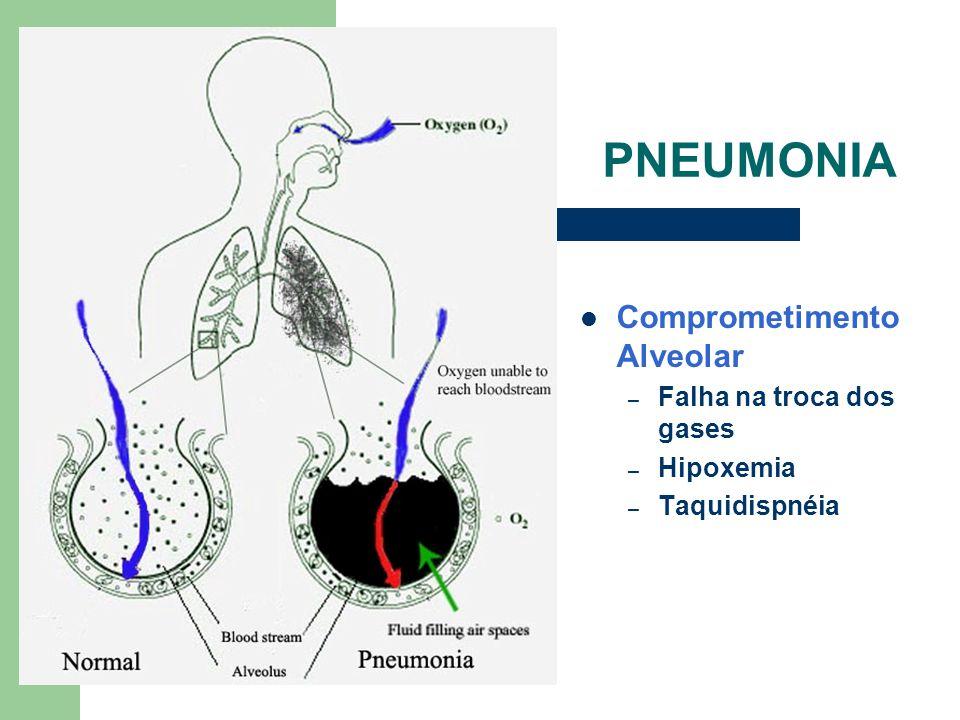 PNEUMONIA Comprometimento Alveolar Falha na troca dos gases Hipoxemia