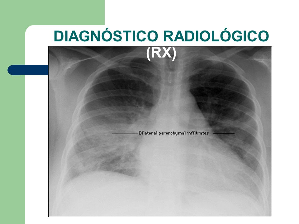 DIAGNÓSTICO RADIOLÓGICO (RX)