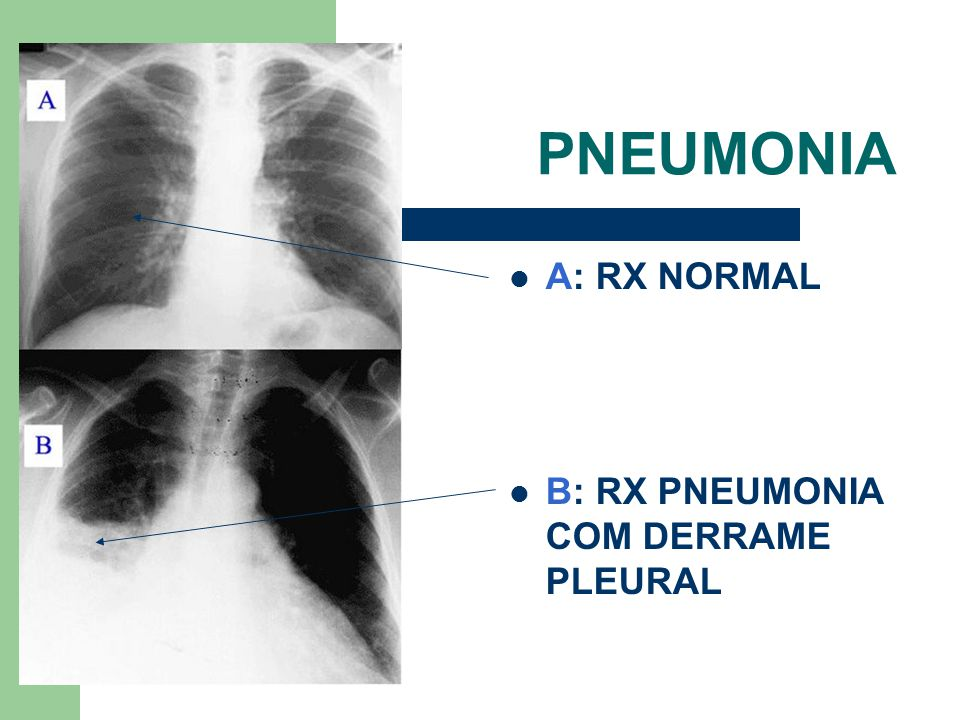 PNEUMONIA A: RX NORMAL B: RX PNEUMONIA COM DERRAME PLEURAL