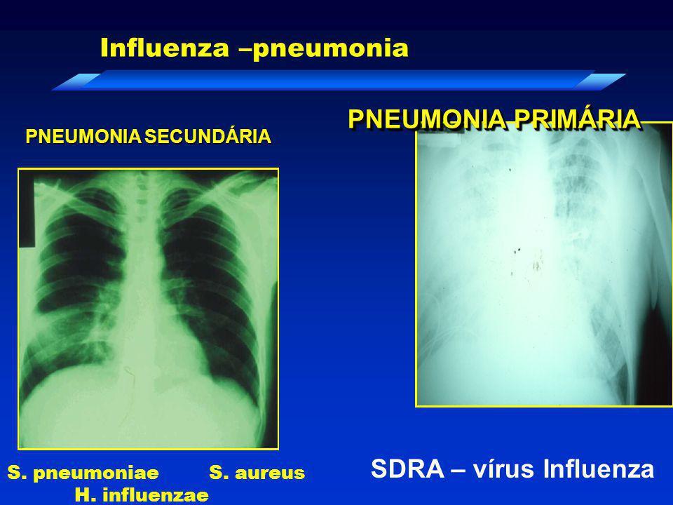 PNEUMONIA PRIMÁRIA SDRA – vírus Influenza