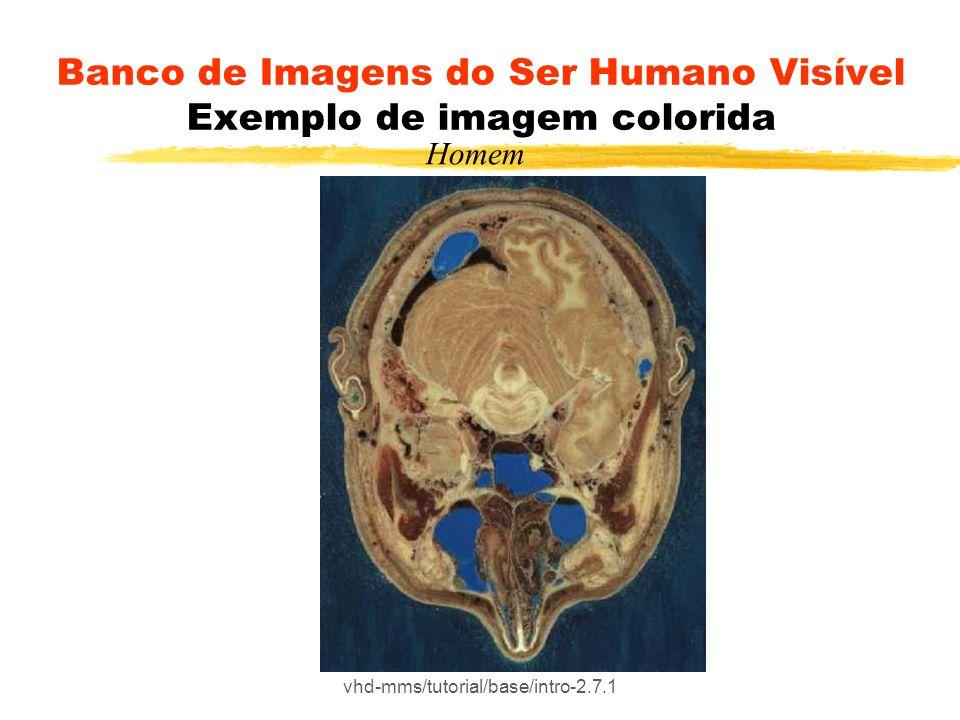 Banco de Imagens do Ser Humano Visível Exemplo de imagem colorida