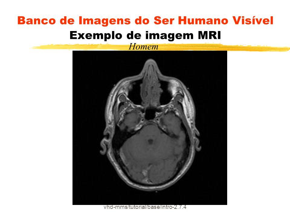 Banco de Imagens do Ser Humano Visível Exemplo de imagem MRI