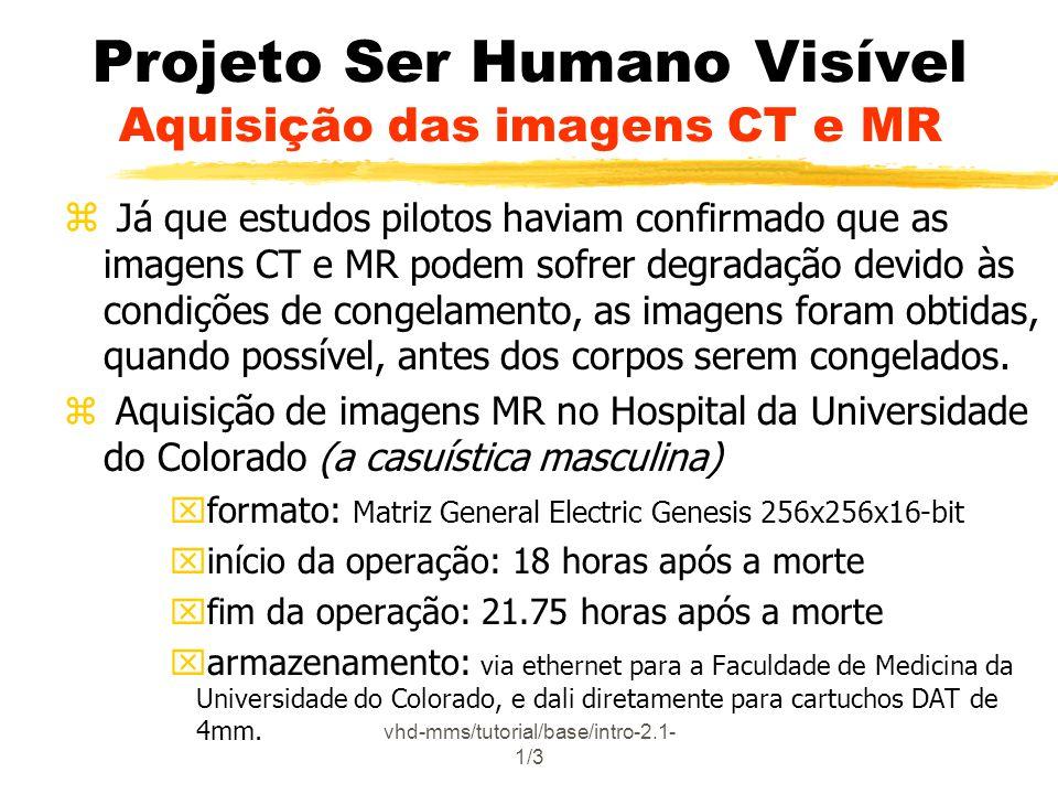 Projeto Ser Humano Visível Aquisição das imagens CT e MR