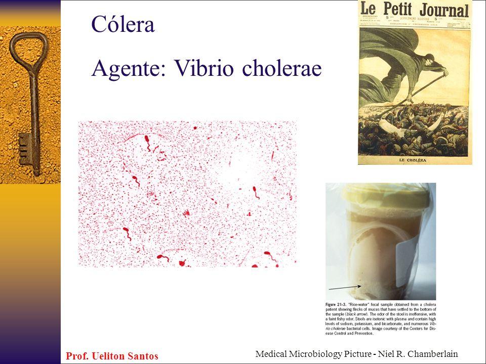 Agente: Vibrio cholerae