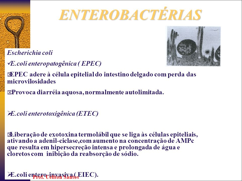 ENTEROBACTÉRIAS Escherichia coli E.coli enteropatogênica ( EPEC)