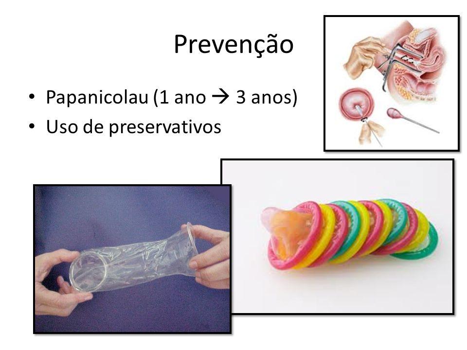 Prevenção Papanicolau (1 ano  3 anos) Uso de preservativos