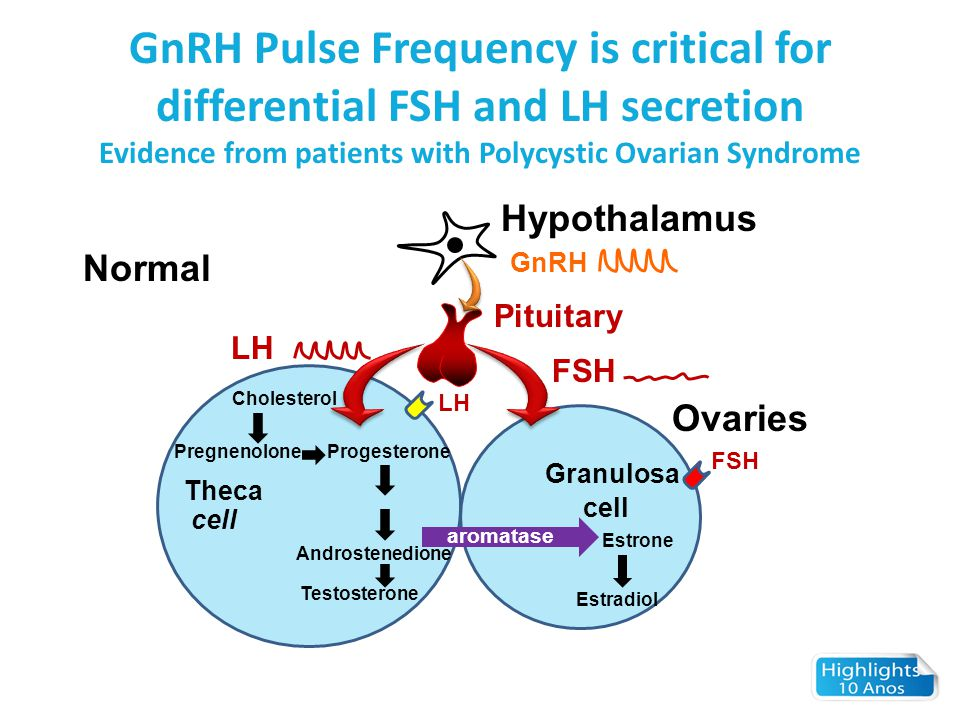 GnRH Pulse Frequency is critical for differential FSH and LH secretion Evidence from patients with Polycystic Ovarian Syndrome