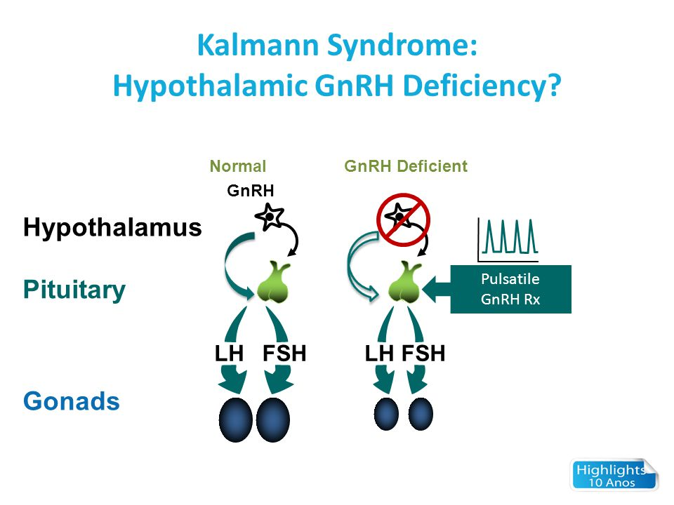 Hypothalamic GnRH Deficiency