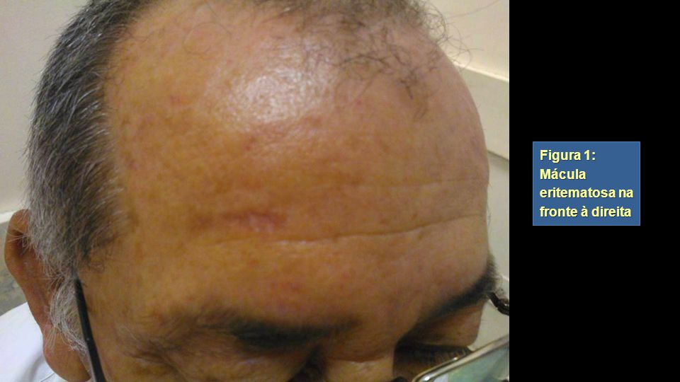 Figura 1: Mácula eritematosa na fronte à direita