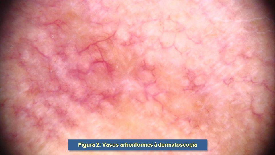 Figura 2: Vasos arboriformes à dermatoscopia