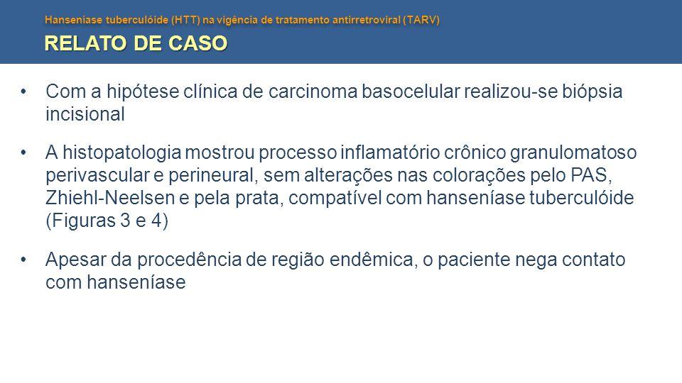 RELATO DE CASO Com a hipótese clínica de carcinoma basocelular realizou-se biópsia incisional.